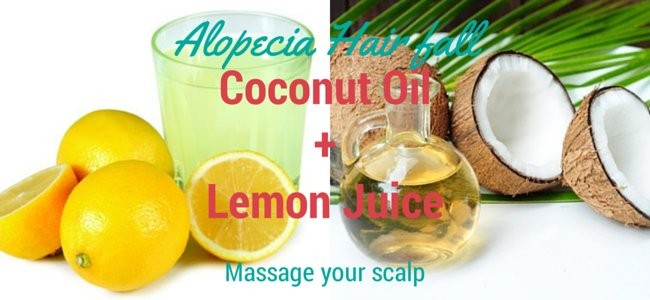 Alopecia hair loss home remedies