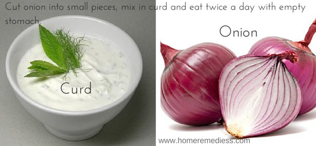 bloody hemorrhoids natural remedy onion with curd