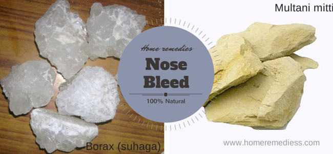 Home treatment for nosebleed epistaxis