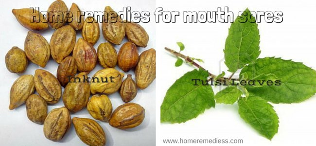 Find home remedies for mouth sores, home remedies for mouth ulcers, home remedies for canker sores, how to treat canker sores, blisters in mouth and sores in mouth.