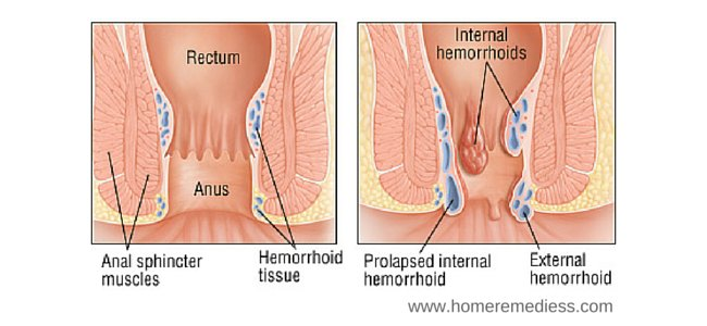 hemorrhoid - disease, causes and types - traditional medicine, Human Body