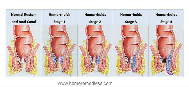 Internal hemorrhoids & External Hemorrhoids symptoms and cure