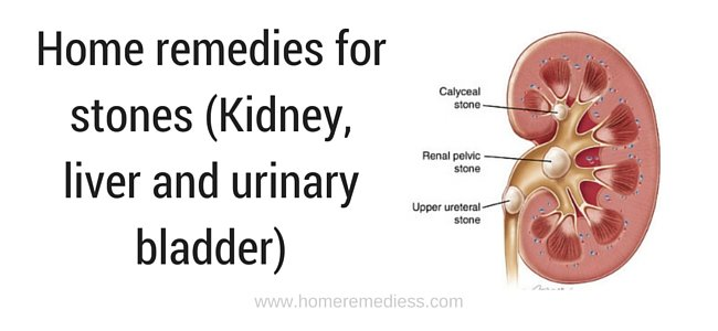 Home remedies for stones (Kidney, liver and urinary bladder)