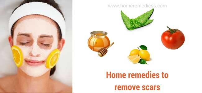 Home remedies to remove scars with ease