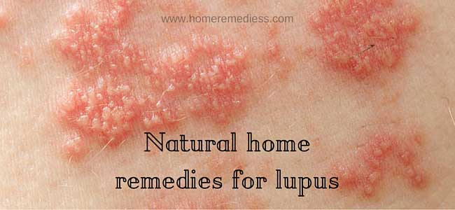 Natural home remedies for lupus